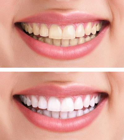 Teeth whitening from Rotherham dentist